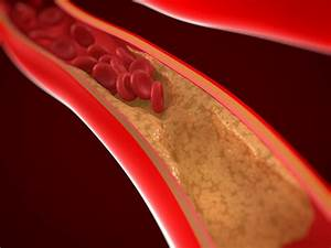 The Role Of Arteries In The Circulatory System