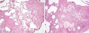 Differential diagnosis of usual interstitial pneumonia: when is it truly idiopathic? - European ...  Pneumonia Asbestos