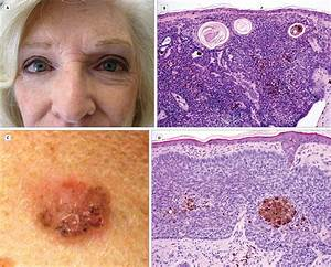 Pigmented Basal Cell Carcinoma: Uncommon Presentation in Blue-Eyed Patients - Dermatology - JAMA ...  Skin Cancer Birthmarks - pigmented