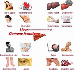 Liver Disease Internal Bleeding