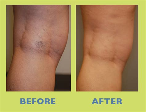 sclerotherapy   gallery images rejuvenation