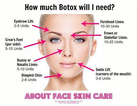 How much Botox will I need? | Botox cosmetic, Botox