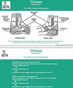 Ankle Sprain Foot Ankle Orthobullets