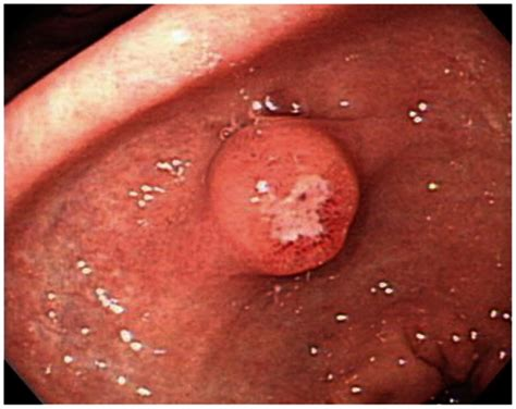 Gastric Polyps And Protruding Type Gastric Cancer