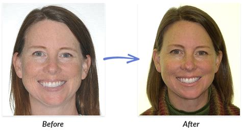 Before & After Braces Photos  Delurgio & Blom Orthodontics