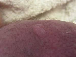 The gallery for --> Genital Herpes On Testicles