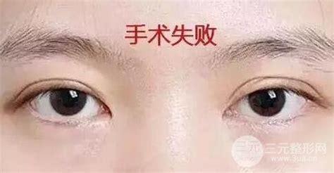 做双眼皮的危害和失败图片-三元整形网