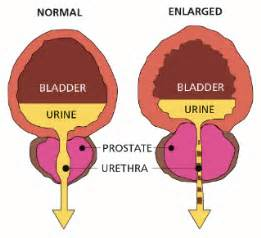 Enlarged prostate and the ICD Coding System - Prostate Health Secrets  Prostate Diseases Enlarged prostate