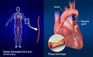 Pics Photos - Coronary Artery Bypass Surgery Procedure Heart Bypass Surgery