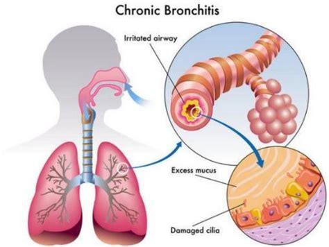 coughing  yellow mucus  chest sore throat dark