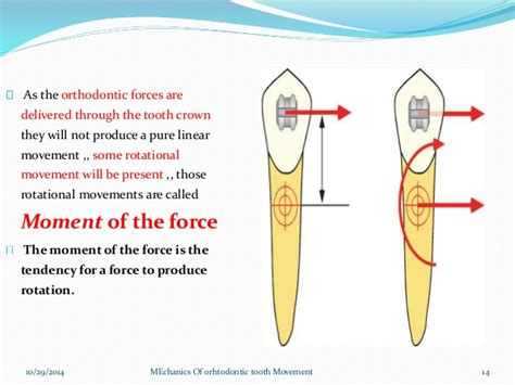 Tooth Movement Diagram by Mechanics Of Orthodontic Tooth Movement