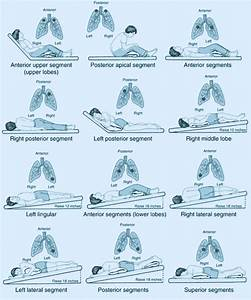 Postural Drainage Positions And Chest Physiotherapy  Cpt