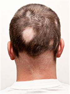 Kerave Hair: Proberen de beste haargroei Formula!