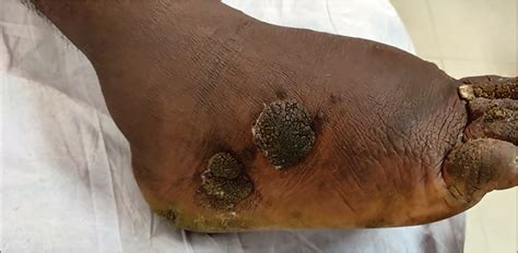 lymphostatic verrucosis journal  skin  sexually