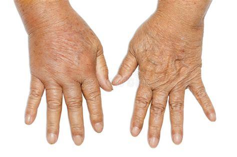 hands swollen  diabetes stock photo image  hand