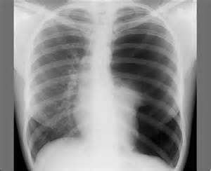 ... space, pneumothorax, tachycardia, tachypnea, tension pneumothorax Pneumothorax