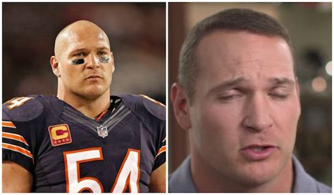 nfl player brian urlacher discusses  hair transplant  source
