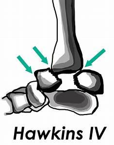 Diagnosing The Central Slip Injury