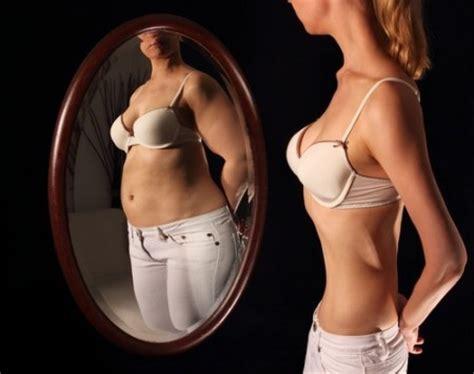 bulimia infoescola