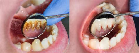 removing plaque  teeth plaque  teeth dental