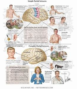 33 best images about Partial/Focal Seizure/Epilepsy on ...