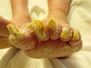 Темные пятна на ногах грибок