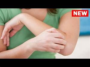 Video: How to Get Rid of Allergies Fast Home Remedies  Allergy Rid