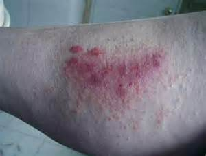 Rashes of Poison Oak Pictures On the Skin