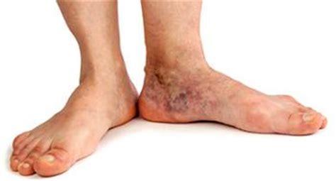 varicose eczema  stasis dermatitis