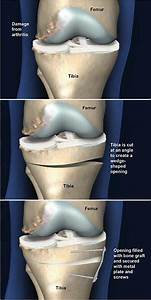 Tibial Osteotomy with Open Wedge   Central Coast ...
