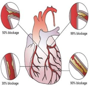 Important Signs And Symptoms Of Ventricular Fibrillation. Urinary Tract Signs Of Stroke. Creative Interior Signs. Snowman Signs Of Stroke. To Do Signs. Excessive Signs. Corridor Signs. Wedding Reception Signs Of Stroke. Pisce Signs