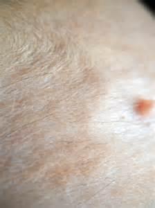 Skin Fungus On Cats
