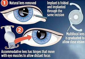 The Lens Implant That Saved Ricky Gervais U0026 39 S Partner Jane
