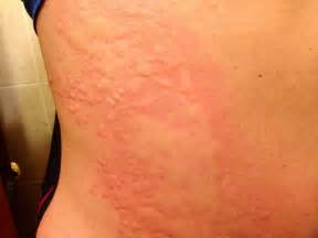 Severe case of hives - Health and Fitness - Pinterest  Hives Angioedema