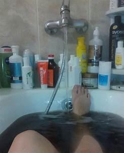 Соленые ванны при псориазе