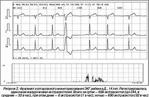 Нарушение ритма сердца на фоне гипертонии