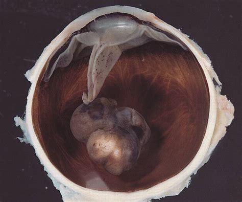 malignes melanom auge praeparat doccheck pictures
