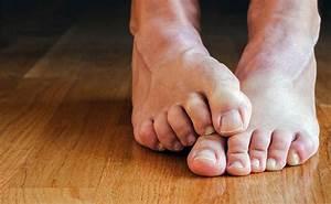 Чем можно избавиться от грибка на ногах в домашних условиях быстро