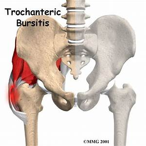 knee cartilage pain management