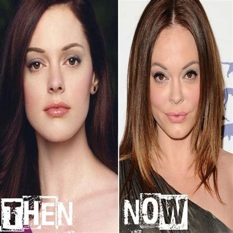 Rose McGowan Plastic Surgery Before After
