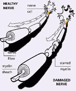 pathophysiology  guillain barre syndrome nanda care plan