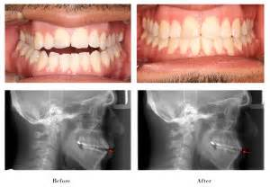 Before and After Photos – Florman Orthodontics