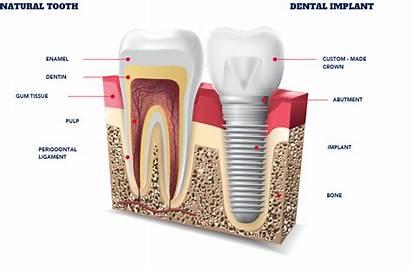 Implants Dental Implant Types Teeth Most Common