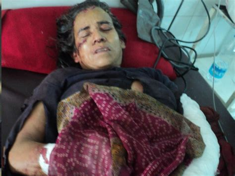 year  indian woman  recovering  hospital