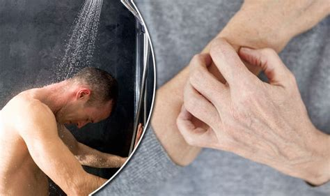 Shower For Eczema - eczema and psoriasis a shower could be worsening