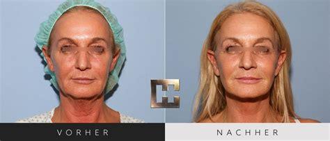 Facelift Vorher Nachher by Facelift Vorher Nachher 155 Dr Georg Huemer