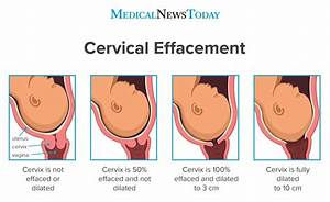 What To Know About Cervical Effacement  Measurements And