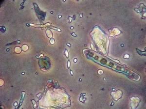 Helminthosporium  Bipolaris