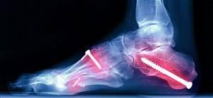 Broken Foot  U0026 Foot Fracture  Causes  Symptoms  Treatments