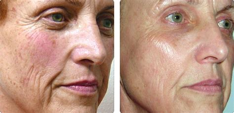 Photo Facial for Rosacea and Pigmentation | Clarity MedSpa